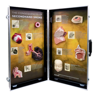 Secondhand Smoke Consequences 3-D Display for health education by Health Edco with models of smoke-damaged organs, 78925